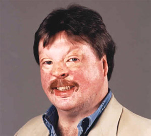 SpeakOutSimonWeston